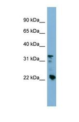 NBP1-55088 - Beta-crystallin B3