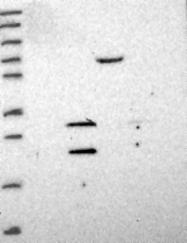 NBP1-91813 - Beta-crystallin B3