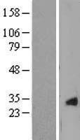 NBL1-09502 - CRYGS Lysate