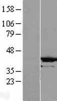 NBL1-09504 - CRYZL1 Lysate