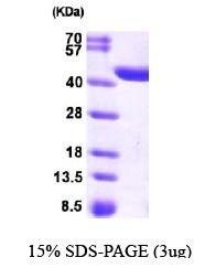 NBP1-44477 - Zeta-crystallin homolog