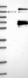 NBP1-81851 - CSGALNACT2