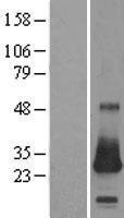 NBL1-09540 - CSRP2 Lysate
