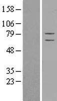 NBL1-09541 - CSRP2BP Lysate