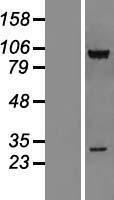 NBL1-09542 - CSRP2BP Lysate