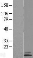 NBL1-09549 - CST6 Lysate