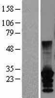 NBL1-09559 - CT45A2 Lysate
