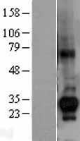 NBL1-09566 - CTDSP1 Lysate