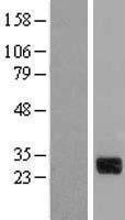 NBL1-09567 - CTDSP1 Lysate