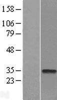NBL1-09568 - CTDSP2 Lysate