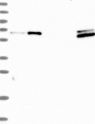 NBP1-91814 - CTDSPL2