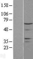 NBL1-09570 - CTDSPL2 Lysate