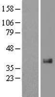 NBL1-09572 - CTGF Lysate