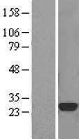 NBL1-09574 - CTHRC1 Lysate