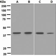 NBP1-95118 - CD152 / CTLA4