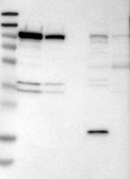 NBP1-82728 - Catenin alpha-3 / CTNNA3