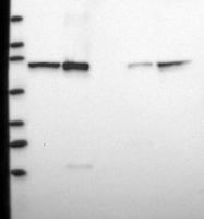 NBP1-88297 - CTNNBL1