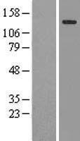 NBL1-09582 - CTR9 Lysate