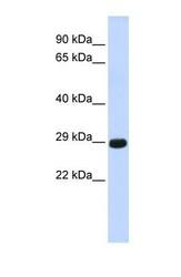 NBP1-62678 - Chymotrypsin