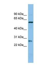 NBP1-69669 - Chymotrypsin