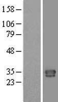 NBL1-08341 - CTRP1 Lysate