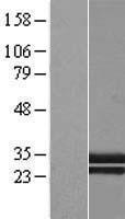 NBL1-08342 - CTRP1 Lysate
