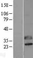NBL1-08343 - CTRP2 Lysate