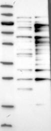 NBP1-84171 - CTTNBP2NL