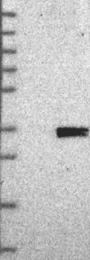 NBP1-88538 - CUEDC2
