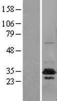 NBL1-09603 - CUEDC2 Lysate