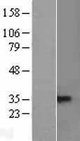NBL1-17148 - CVID Lysate