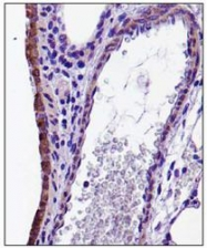 NBP1-49539 - Fractalkine / CX3CL1