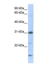 NBP1-59077 - CXCL16