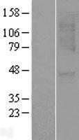 NBL1-11968 - CXCR1 Lysate