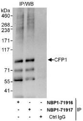 NBP1-71917 - CpG-binding protein
