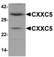 NBP1-76513 - CXXC5