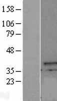 NBL1-09638 - CXorf21 Lysate