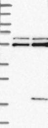 NBP1-84343 - KKLC1