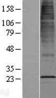 NBL1-09650 - CYB561D2 Lysate