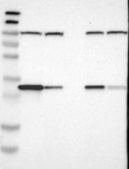 NBP1-83144 - CYB5R1