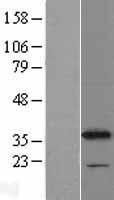 NBL1-09653 - CYB5R1 Lysate