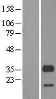 NBL1-09654 - CYB5R3 Lysate