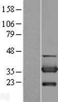 NBL1-09655 - CYB5R3 Lysate