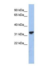 NBP1-54770 - Cytochrome C1