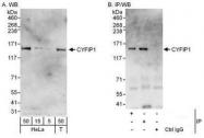 NBP1-50028 - CYFIP1