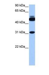 NBP1-54921 - Cylicin 2