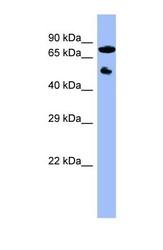 NBP1-56518 - CYP11B2
