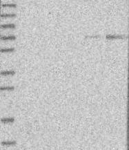 NBP1-85496 - CYP1B1