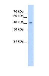 NBP1-62400 - CYP2A13