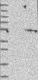 NBP1-83659 - CYP2W1
